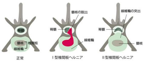 tsuikanban003